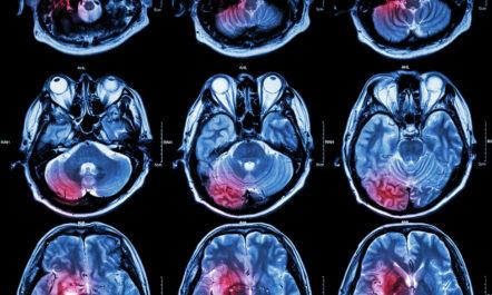 Neurosurgery and erectile dysfunction
